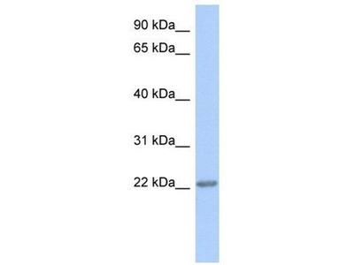 anti-TRAPPC5 antibody
