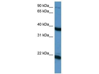 anti-PTN (pleiotrophin) antibody