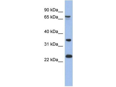 anti-TBC1D25 antibody