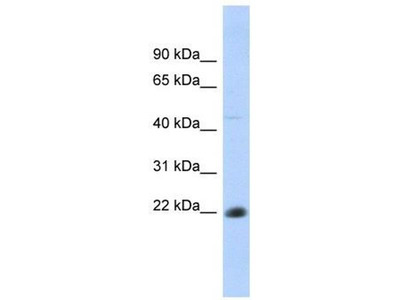 anti-CD40 Molecule, TNF Receptor Superfamily Member 5 (CD40) antibody