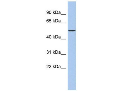 anti-DALRD3 antibody