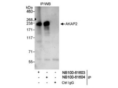 Rabbit Polyclonal AKAP2 Antibody