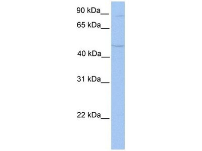 anti-TMTC2 antibody