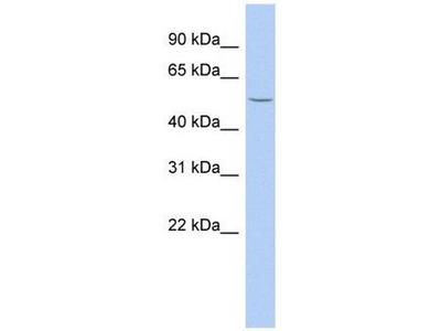 anti-beta-1,3-N-Acetylgalactosaminyl Transferase 2 (B3GALNT2) (Middle Region) antibody