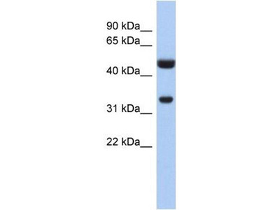 anti-SULT1B1 antibody