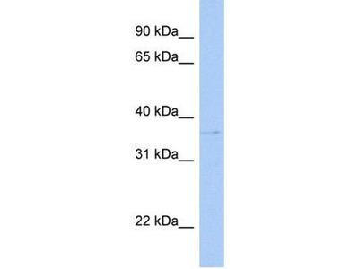 anti-SULT1C2 (SULT1C4) antibody