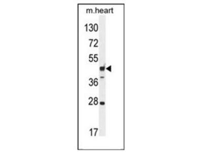 anti-Rab Interacting Lysosomal Protein-Like 1 (RILPL1) (AA 344-374), (C-Term) antibody
