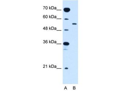 anti-SLC2A10 antibody