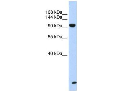 anti-TNRC6B antibody
