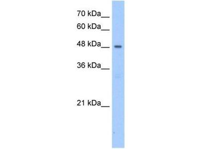 anti-Patatin-Like phospholipase Domain Containing 5 (PNPLA5) antibody