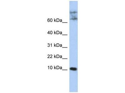 anti-Chemokine-Like Factor (CKLF) antibody