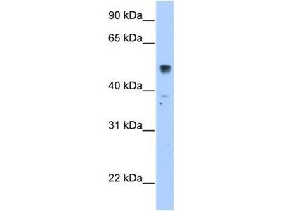 anti-SLC35F5 antibody
