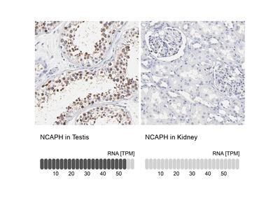 Anti-NCAPH Antibody