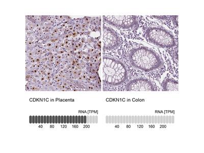 Anti-CDKN1C Antibody