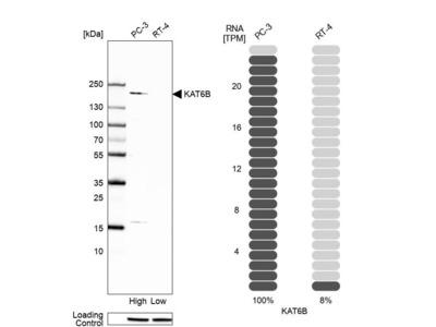 Anti-KAT6B Antibody