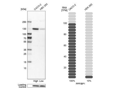 Anti-PPFIBP1 Antibody