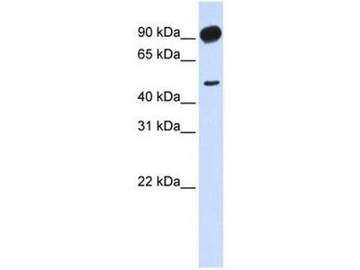 anti-Adducin beta 2 antibody