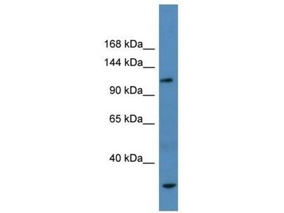 anti-AP3B1 antibody