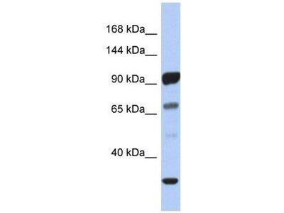 anti-PCDHA10 antibody