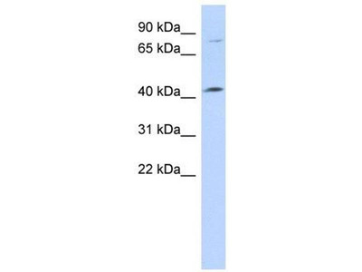 anti-Chromosome 1 Open Reading Frame 177 (C1ORF177) (Middle Region) antibody