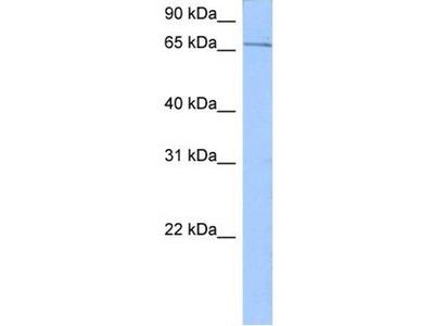 anti-SRPR antibody
