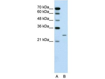anti-BPIFA1 antibody
