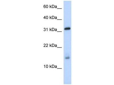 anti-EIF1AX antibody