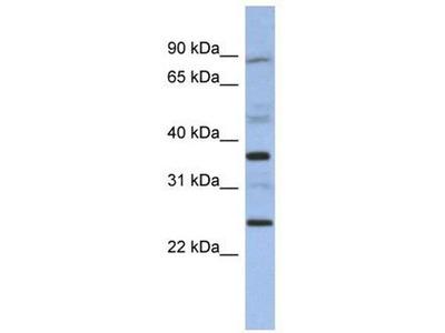 anti-Melanoma Antigen Family B, 3 (MAGEB3) antibody