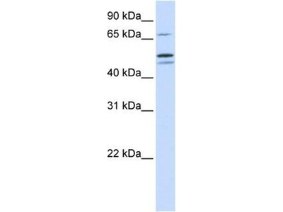 anti-Glutamyl-tRNA Synthetase 2 Mitochondrial (Putative) (EARS2) antibody