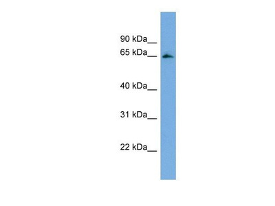 anti-FBXL5 antibody