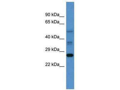 anti-COMMD2 antibody