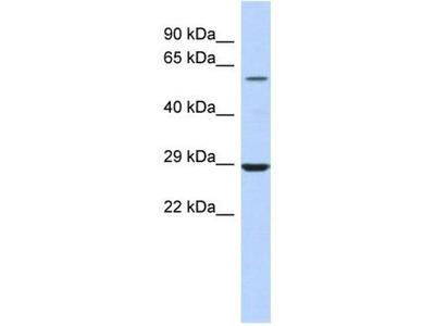 anti-LPCAT1 antibody