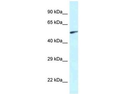 anti-EYA2 antibody