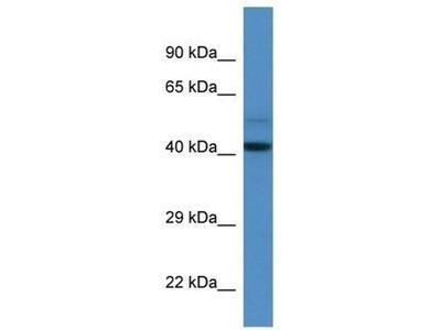 anti-DCAF7 antibody