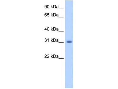 anti-APOBEC2 antibody