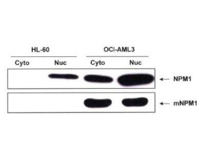 NPM1 Antibody