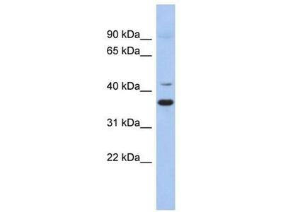 anti-GADL1 antibody