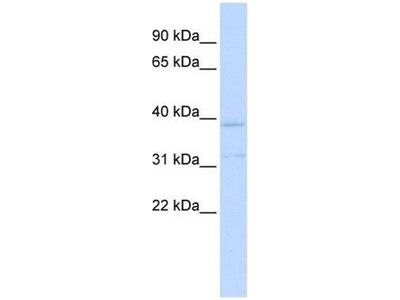 anti-Potassium Channel Subfamily K Member 15 (KCNK15) antibody