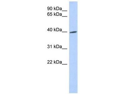 anti-TRIB1 antibody