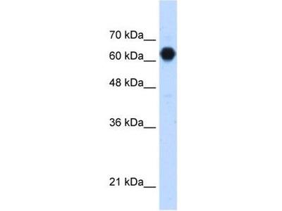 anti-POMGNT2 (GTDC2) antibody