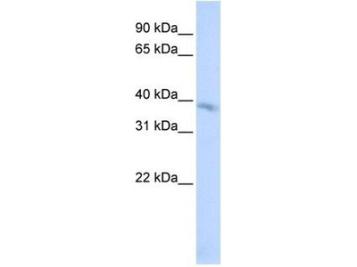 anti-TMEM82 antibody