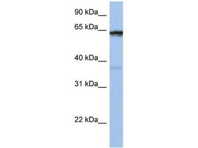 anti-POPDC2 antibody