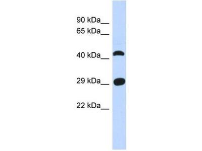anti-C4orf22 antibody