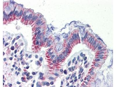 anti-IMPDH1 antibody