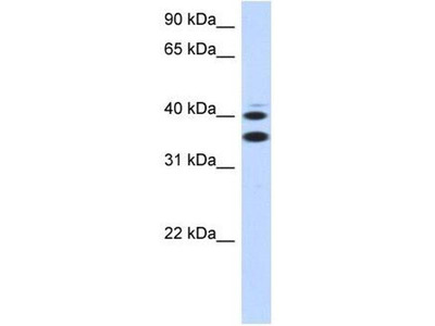 anti-SLC25A32 antibody
