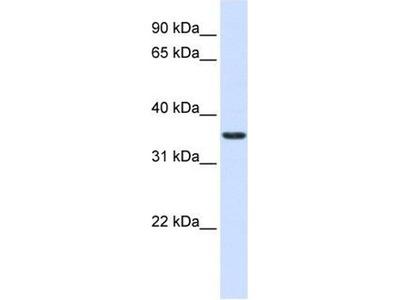 anti-TMX2 antibody