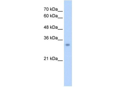 anti-Enoyl Coenzyme A Hydratase 1, Peroxisomal (ECH1) (N-Term) antibody