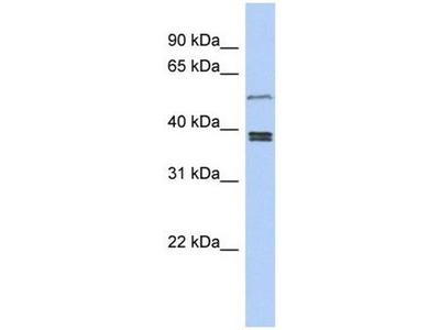 anti-SS18L1 antibody