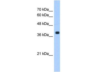 anti-Farnesyltransferase, CAAX Box, alpha (FNTA) (C-Term) antibody