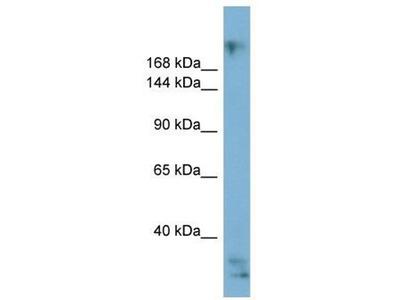 anti-Exophilin 5 (EXPH5) antibody